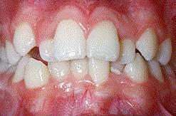 Crowded Teeth
